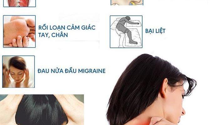 Đi tìm lời giải bấm huyệt chữa đau vai gáy có an toàn không?